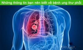 Cách phát hiện sớm các triệu chứng của bệnh ung thư phổi