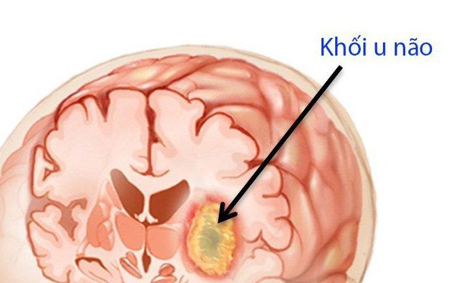 Bệnh ung thư não: 7 dấu hiệu cảnh báo u não