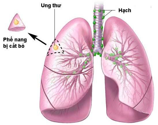 Tìm hiểu Ung thư Phổi